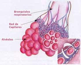Área afectada por bronquiolitis