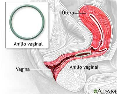 Colocación del anillo vaginal