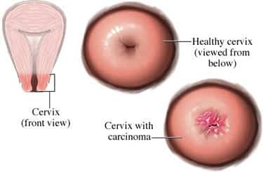 Desarrollo tumoral