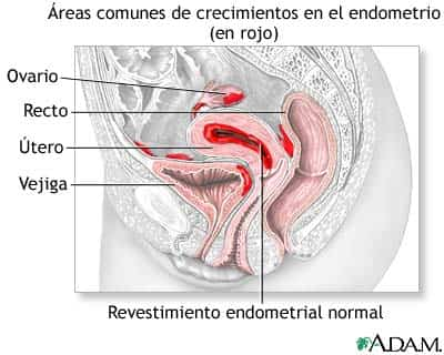 endometriosis 1