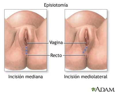 episiotomia.jpg
