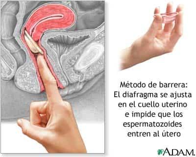 cuidados-sexo-diafragma.jpg