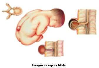 espina-bifida.jpg