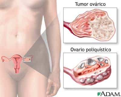 ovario-y-trompa.jpg