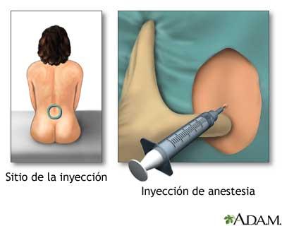 la-epidural1