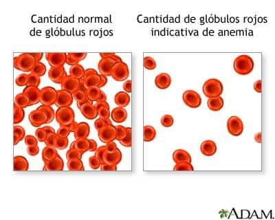 anemia-globulos-rojos