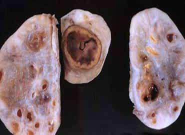 ovario-poliquistico-ntnva