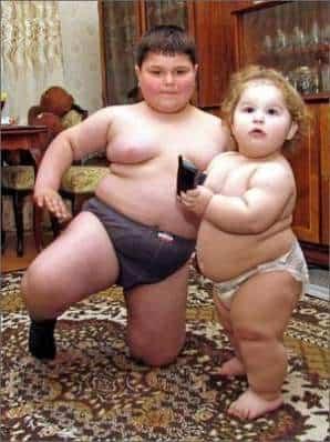 obesidadd