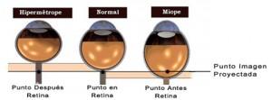 vista hipermetropia