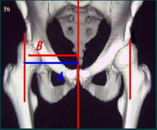 displasia-acetabular-cadera