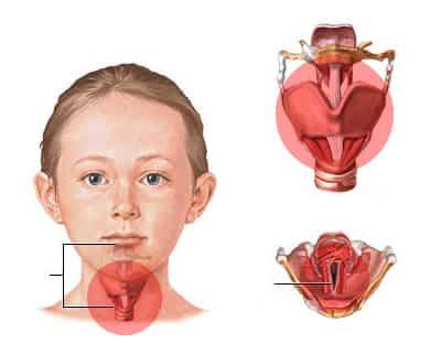 laringitisss