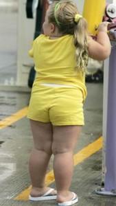 Obesidad infantil 2