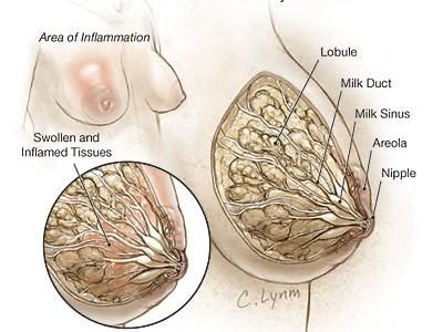 Información a cerca de la mastitis en mujeres