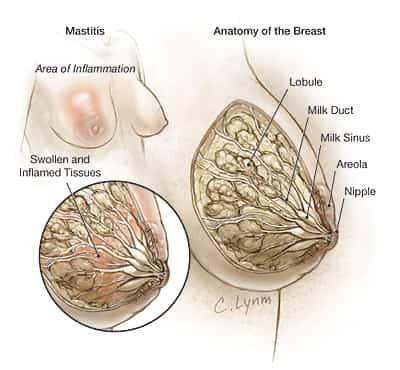 mastitis en mujeres