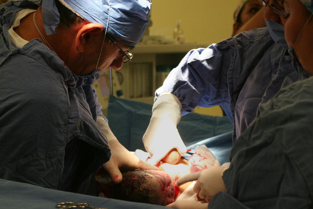 Todo sobre la episiotomía en el parto