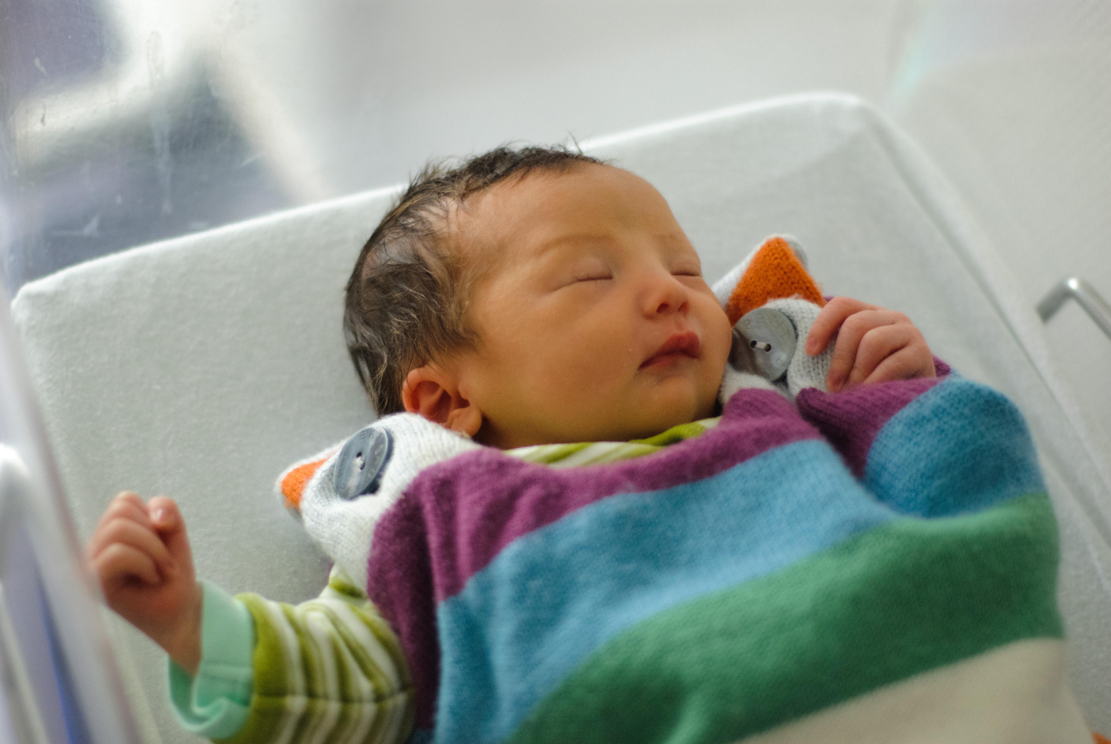 ictericia en bebés 3