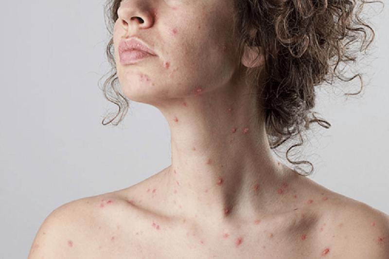 varicela y embarazo