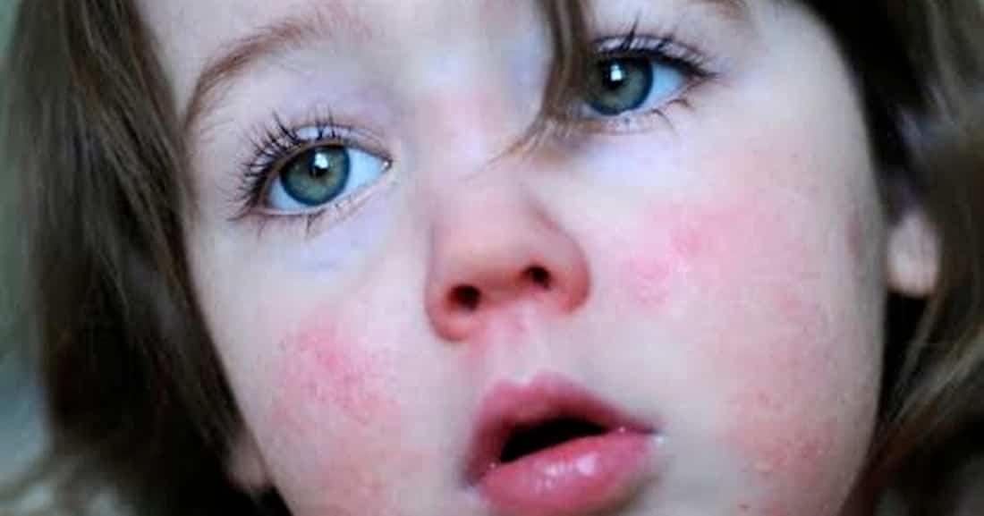 síntomas de la escarlatina