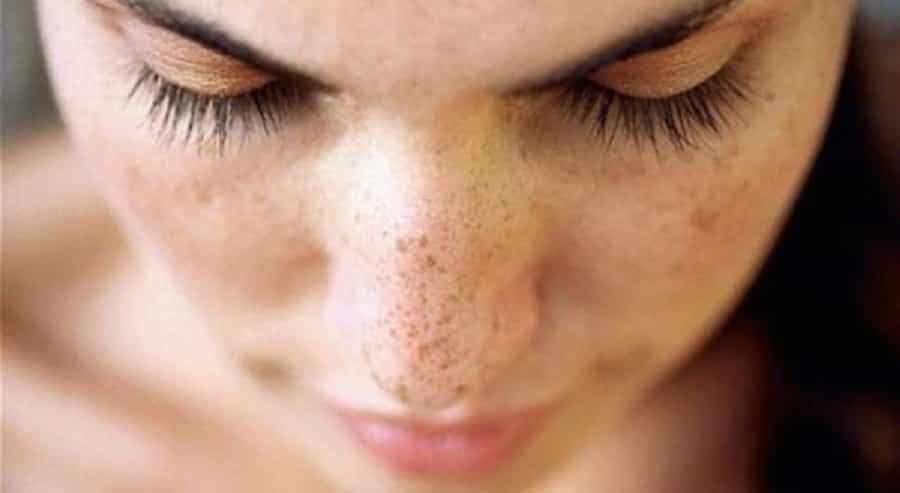 cuidado de la piel en las mujeres
