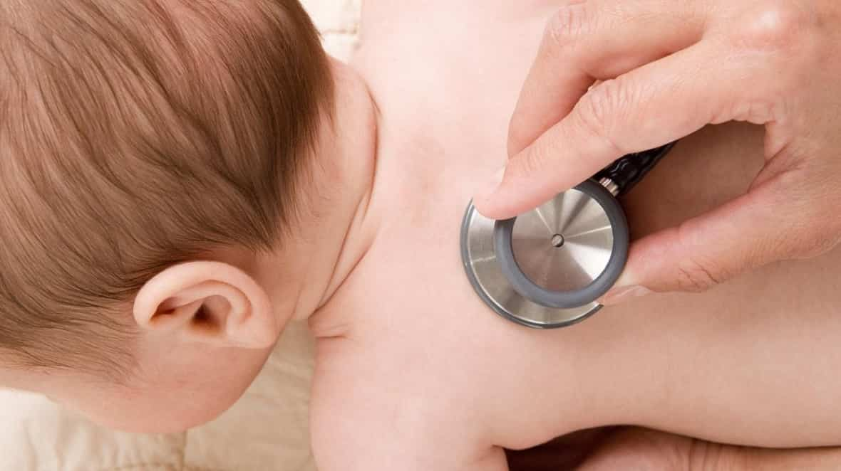 roséola en bebés