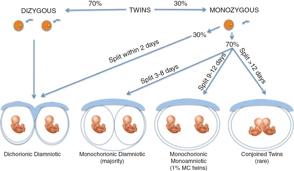Embarazo múltiple